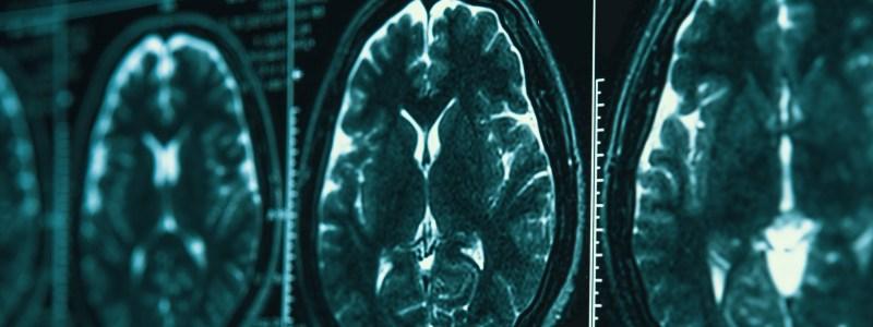 Alzheimer's Diagnosis