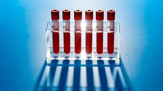 Blood Test for Cancer