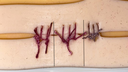 color-changing sutures