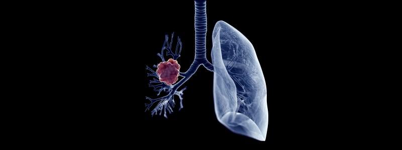 lung cancer blood test