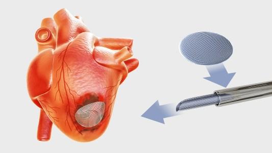 cardiac patch